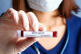 В ОАЭ за минувшие сутки выявлено 747 новых случаев заражения коронавирусом