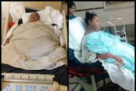 Former world's heaviest woman Eman Abd El Aty dies in Abu Dhabi